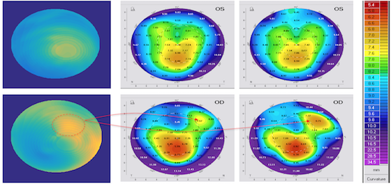 Corneal Biomechanics in keratoconus
