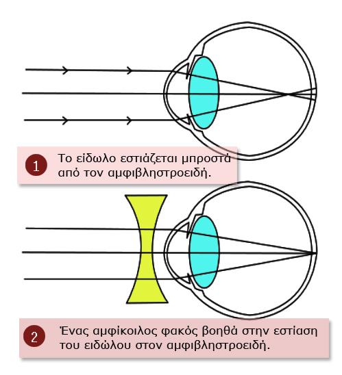 da31cc0a16 Η μυωπία - Τα μάτια ενός παιδιού - Athens Eye Hospital