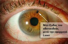 a0f03fe822 Στο οξύ γλαύκωμα (όπου η γωνία είναι κλειστή) ένα ειδικό Laser  χρησιμοποιείται για να ανοίξει μια οπή στην ίριδα από την οποία θα  εξέρχεται το υδατοειδές ...