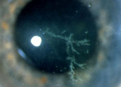 KERATITIS - Inflammations - For Patients - Athens Eye Hospital