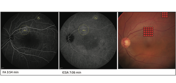 Micro Pulse Yellow Laser for the treatment of central serous retinopathy